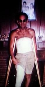 Daddy - Broken Leg - 1963